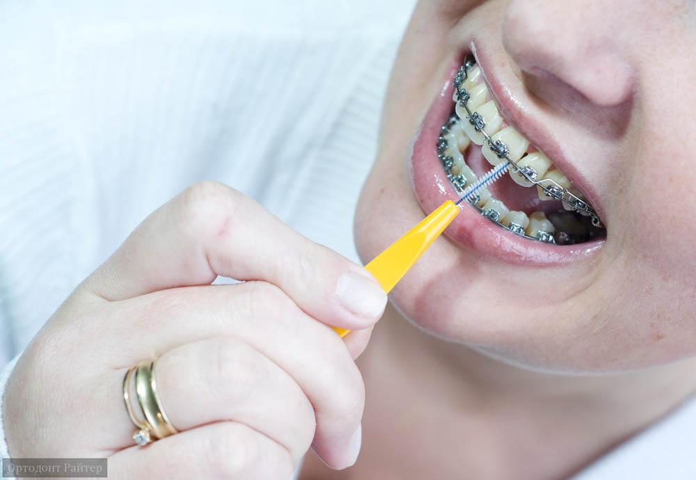 Какими пастами чистить зубы с брекетами