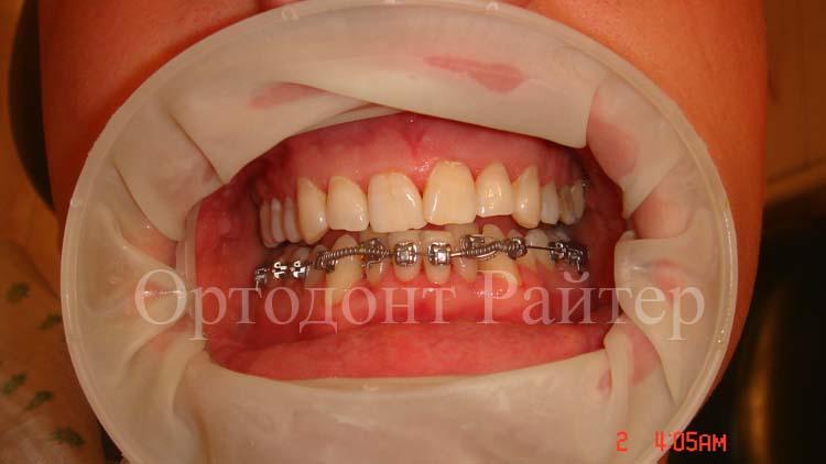 Ортодонт в москве установил данный